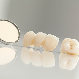 dental crown and bridge on a table