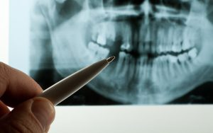 hand of dentist reviewing x-rays