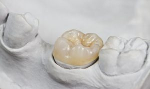 A dental crown sitting in a dental model.